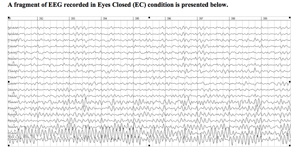 A fragment of EEG output by Brainwise