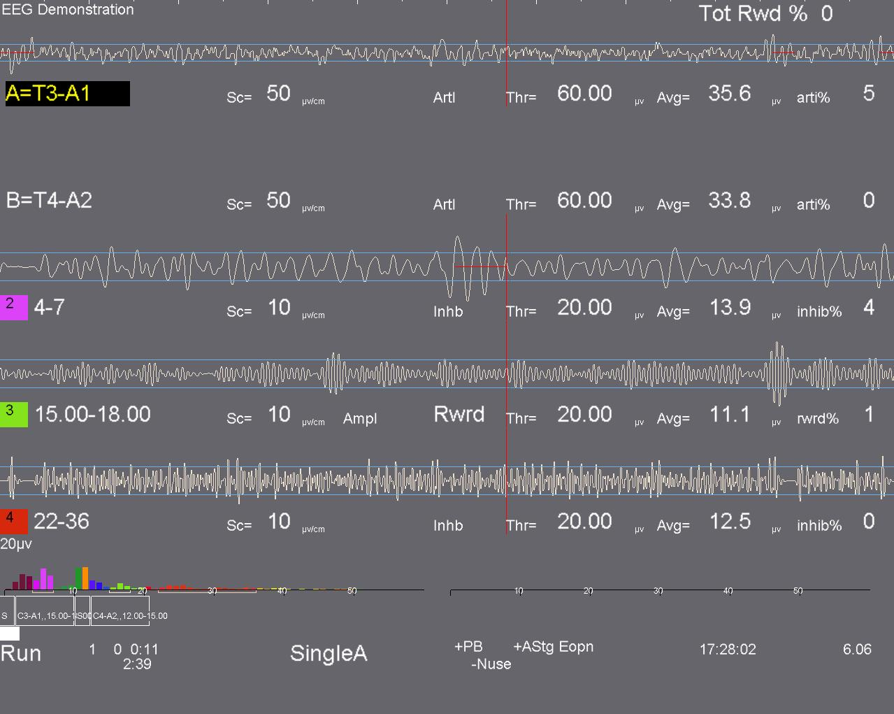 EEG output for neurofeedback therapy and training by Brainwise